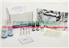 腮腺炎病毒IgM试剂盒